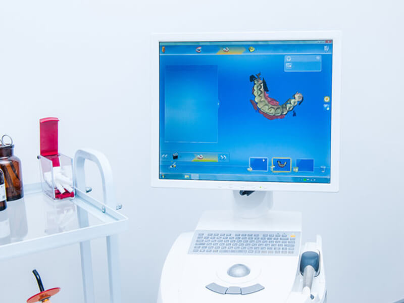 CEREC® Computer Screen