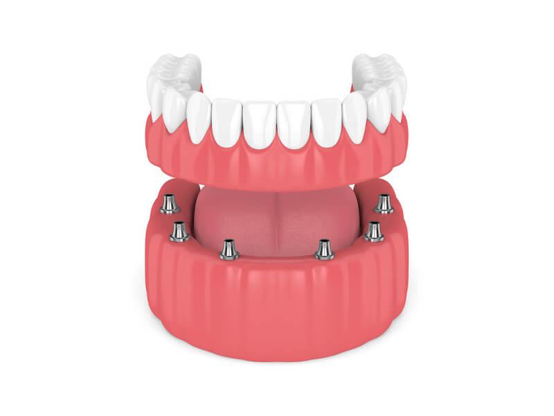 Lower Arch Dentures