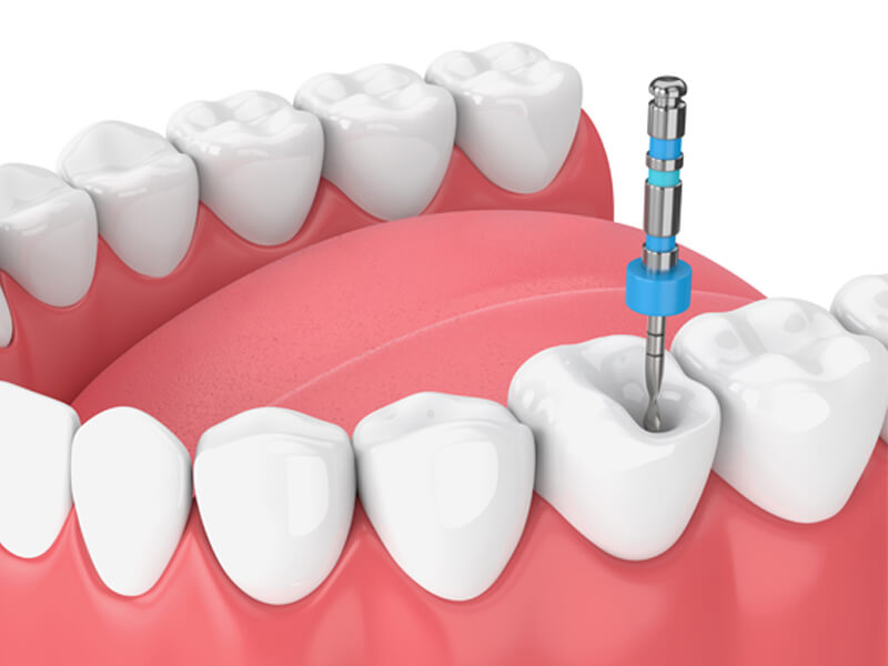 Lower Arch Molar Root Canal