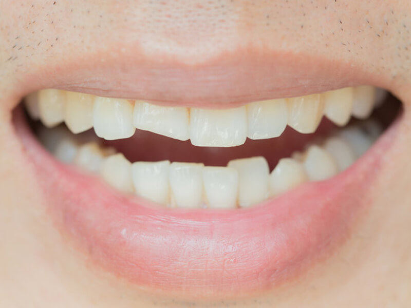 Woman With Cracked Front Tooth